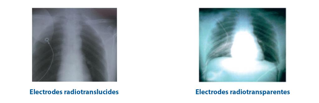 Electrodes radiotranslucides et radiotransparentes